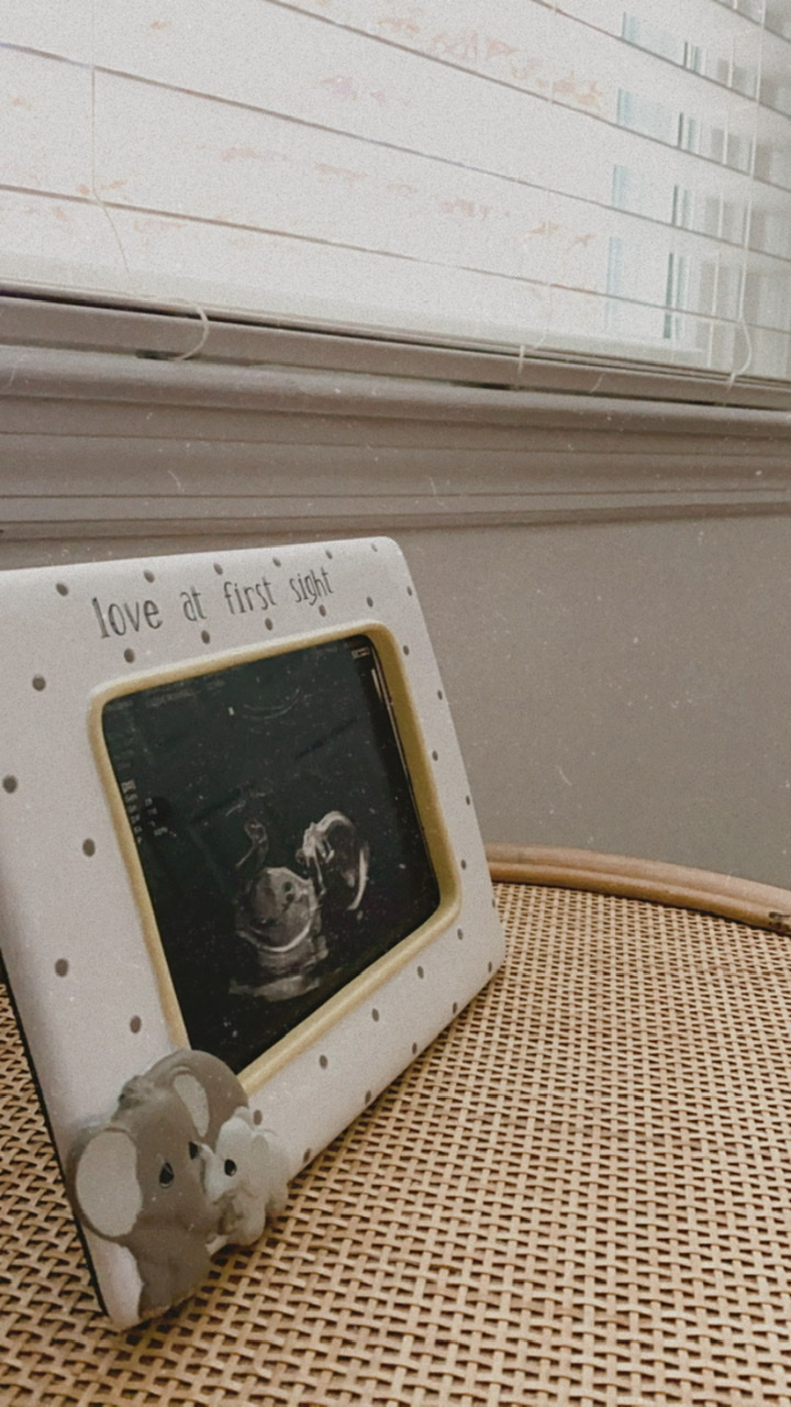 Sweet little love at first sight picture frame with our 20-week anatomy scan ultrasound photo inside.